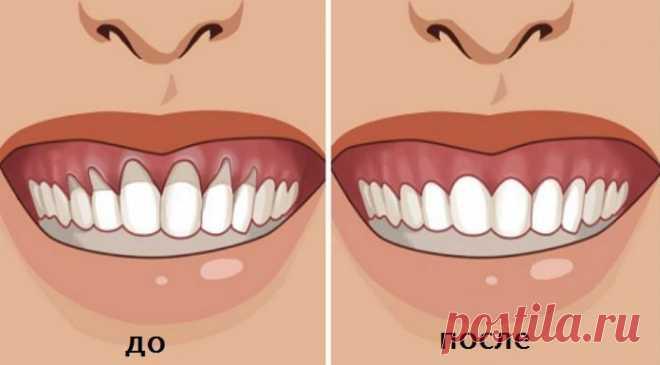 Вы заметили оголение шейки или корня зуба? Немедленно начинайте лечение — 6 натуральных рецептов… - Советы и Рецепты Эти проверенные рецепты дают 100% результат! Оголение шейки и корня зуба не следует оставлять без лечения. У многих людей есть проблемы с тем, что оголилась шейка или корень зуба. Это вызывает дискомфорт и сопровождается очень неприятными болезненными ощущениями и приводит к накоплению бактерий, которые разрушают зубы и вызывают воспаление десен. Почему это происходит и что …
