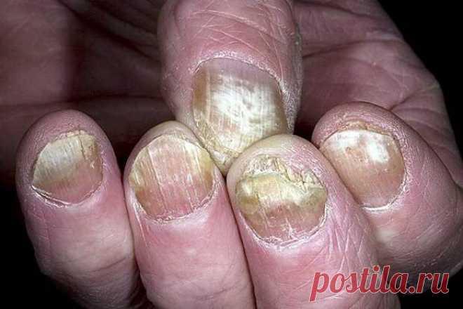 Мазь ловка против грибка  Грибок на ногтях или пальцах доставляет очень много неприятных минут. Я это знаю по себе. Заразилась грибком на рынке. Хотела купить новые перчатки к зиме, перемерила их уйму, а потом однажды обна…