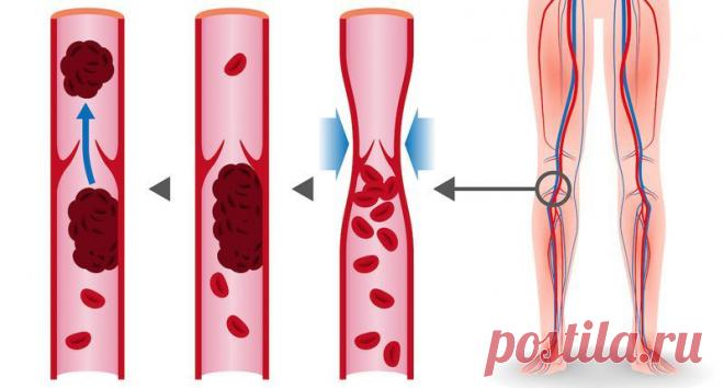8 продуктов, которые разжижают кровь и способны предотвратить тромбоз - Интересный блог Очень важно поддерживать нормальную плотность крови, ведь ее чрезмерная густота может спровоцировать серьезные нарушения сердечно-сосудистой системы.