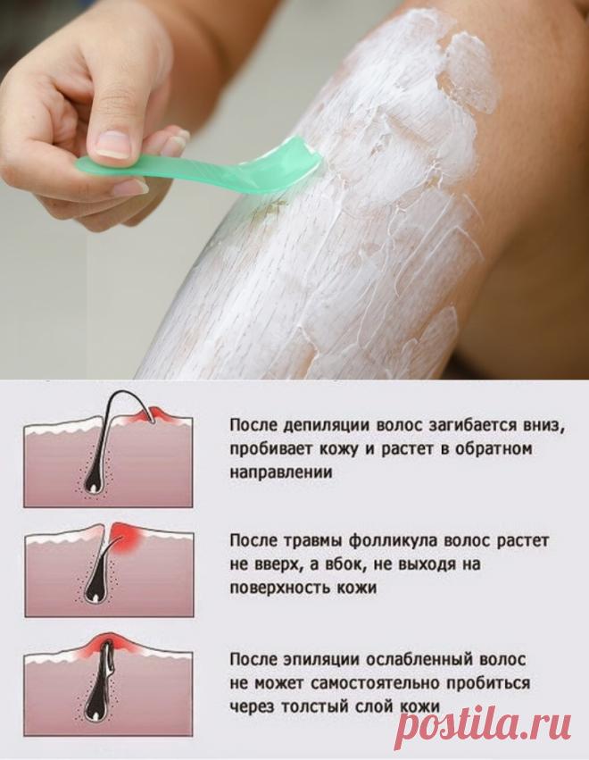 Как удалить волосы на интимном месте навсегда в домашних условиях