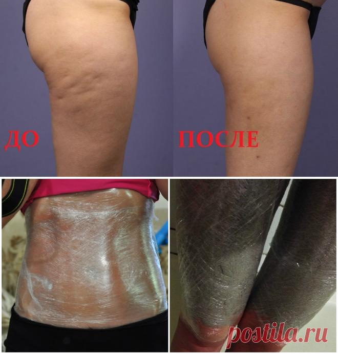 обертывание для похудения irecommend
